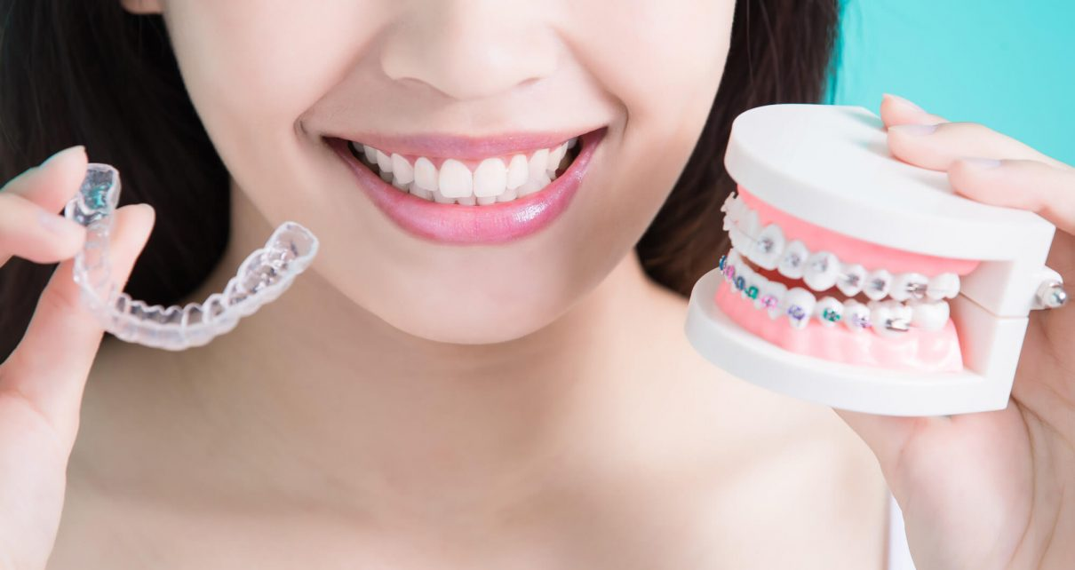 How do invisible braces compare to traditional braces
